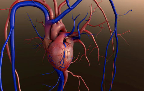 Aortic Stenosis,