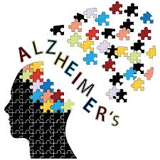 Five million Americans are living with Alzheimer's